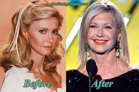 OliviaNewtonJohnPlasticSurgery Olivia Newton John Before and After Plastic Surgery Pictures