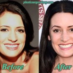 Paget Brewster Plastic Surgery Before and After Pictures