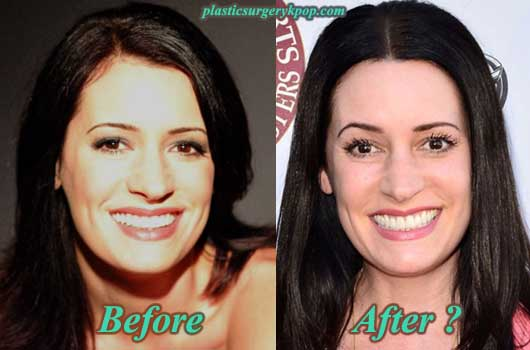 PagetBrewsterPlasticSurgery Paget Brewster Plastic Surgery Before and After Pictures