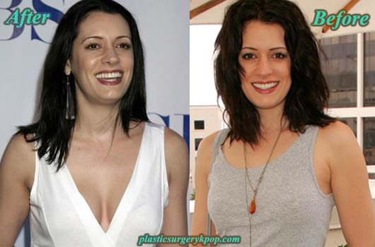 PagetBrewsterPlasticSurgeryPicture Paget Brewster Plastic Surgery Before and After Pictures