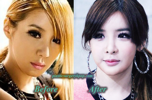ParkBom2NE1PlasticSurgery Park Bom 2NE1 Plastic Surgery Before and After Pictures