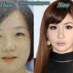 Park Bom 2NE1 Plastic Surgery Before and After Pictures