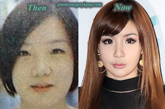 ParkBomPlasticSurgery Park Bom 2NE1 Plastic Surgery Before and After Pictures