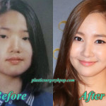 Park Min Young Plastic Surgery Before and After Pictures