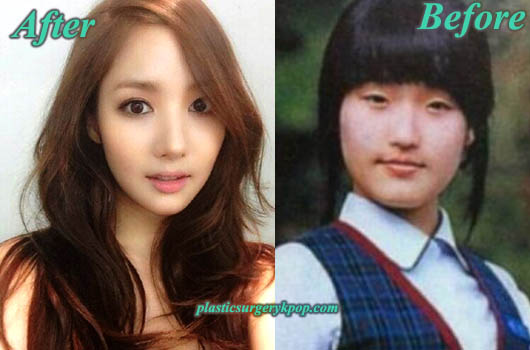 ParkMinYoungPlasticSurgeryBeforeandAfter Park Min Young Plastic Surgery Before and After Pictures