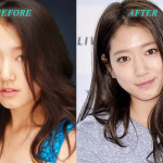 ParkShinHyePlasticSurgery 150x150 Park Shin Hye Plastic Surgery Before and After