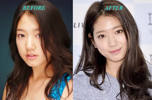 ParkShinHyePlasticSurgery Park Shin Hye Plastic Surgery Before and After