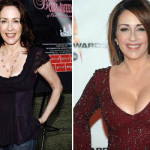 Patricia Heaton Plastic Surgery Before After Pictures