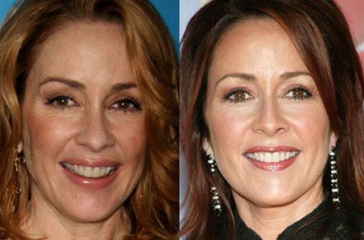 PatriciaHeatonPlasticSurgeryBeforeAfter Patricia Heaton Plastic Surgery Before After Pictures