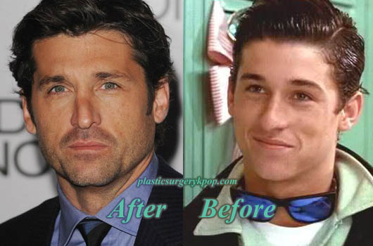 PatrickDempseyNoseJob Patrick Dempsey Nose Job Plastic Surgery Before After Pictures