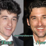 Patrick Dempsey Nose Job Plastic Surgery Before After Pictures