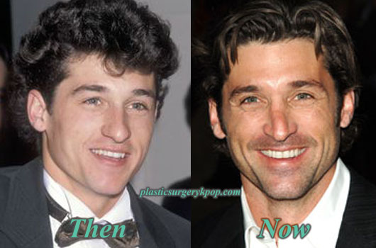 PatrickDempseyPlasticSurgery Patrick Dempsey Nose Job Plastic Surgery Before After Pictures