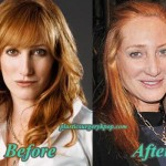 Patti Scialfa Plastic Surgery Before and After Pictures