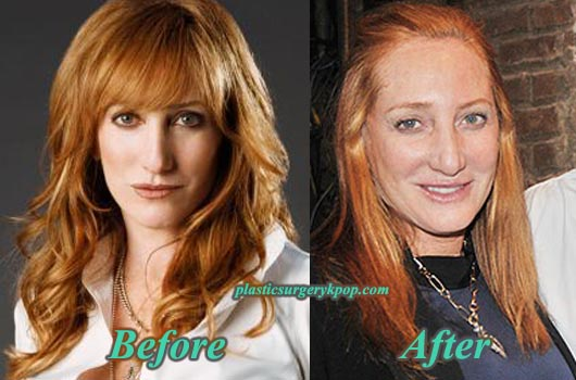 PattiScialfaPlasticSurgery Patti Scialfa Plastic Surgery Before and After Pictures