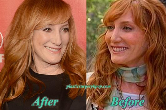 PattiScialfaPlasticSurgeryPicture Patti Scialfa Plastic Surgery Before and After Pictures