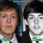 Paul McCartney Plastic Surgery Before After Pictures