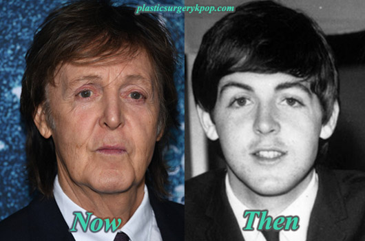 PaulMcCartneyPlasticSurgery Paul McCartney Plastic Surgery Before After Pictures