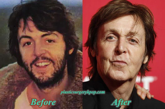 PaulMcCartneyPlasticSurgeryPicture Paul McCartney Plastic Surgery Before After Pictures