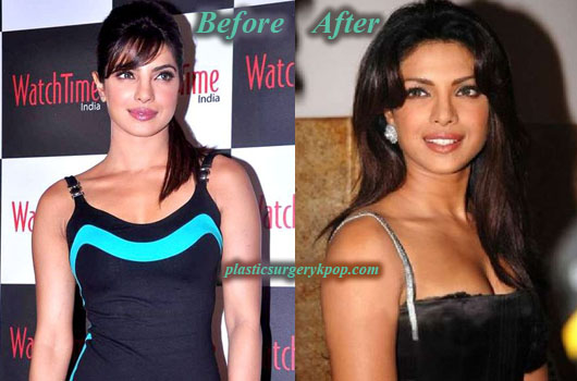 PriyankaChopraBreastAugmentation Priyanka Chopra Plastic Surgery Before After Pictures