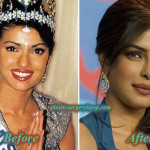 Priyanka Chopra Plastic Surgery Before After Pictures