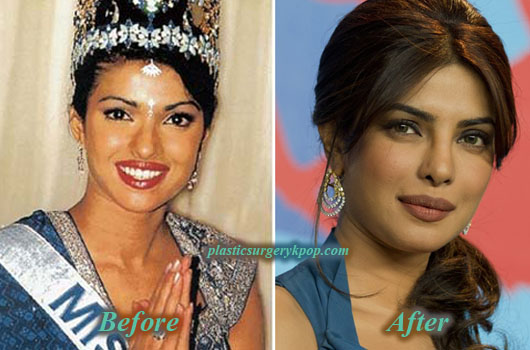 PriyankaChopraPlasticSurgery Priyanka Chopra Plastic Surgery Before After Pictures