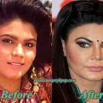 Rakhi Sawant Plastic Surgery Before and After Pictures