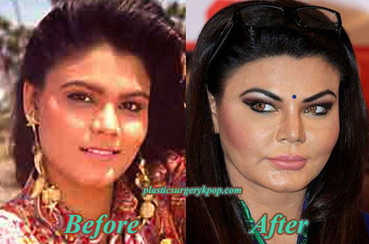 RakhiSawantPlasticSurgery Rakhi Sawant Plastic Surgery Before and After Pictures
