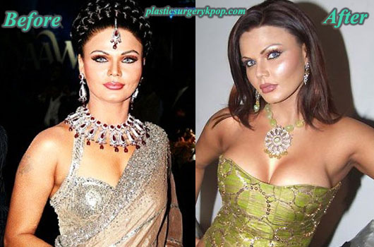 RakhiSawantPlasticSurgeryPicture Rakhi Sawant Plastic Surgery Before and After Pictures
