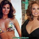 Raquel Welch Plastic Surgery Before After Facelift and Botox Pictures