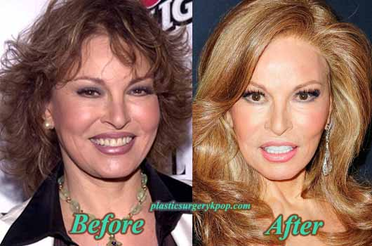 RaquelWelchPlasticSurgeryPicture Raquel Welch Plastic Surgery Before After Facelift and Botox Pictures
