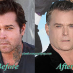 Ray Liotta Plastic Surgery Before and After Pictures