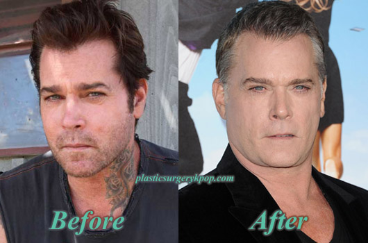RayLiottaPlasticSurgery Ray Liotta Plastic Surgery Before and After Pictures