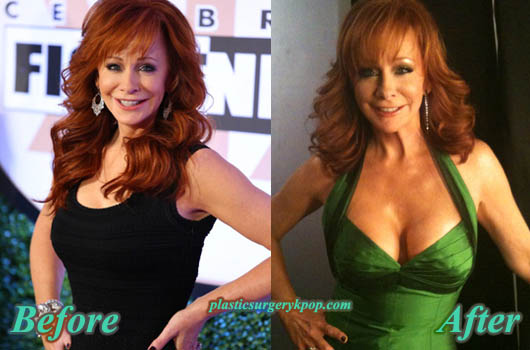 RebaMcentireBreastImplants Reba Mcentire Plastic Surgery Before After Pictures