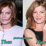 Rene Russo Plastic Surgery Before After Photos