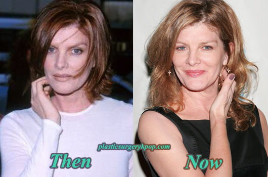ReneRussoPlasticSurgery Rene Russo Plastic Surgery Before After Photos