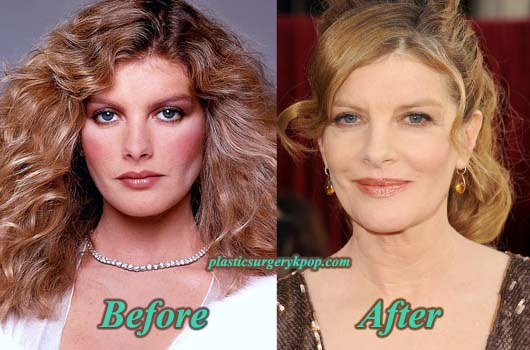 ReneRussoPlasticSurgeryPicture Rene Russo Plastic Surgery Before After Photos