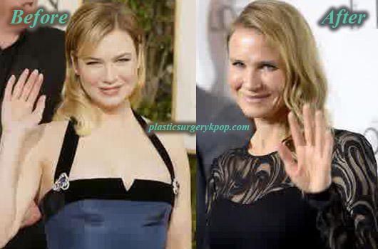 ReneeZellwegerBreastAugmentation Renee Zellweger Plastic Surgery Before After Pictures