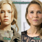 Renee Zellweger Plastic Surgery Before After Pictures
