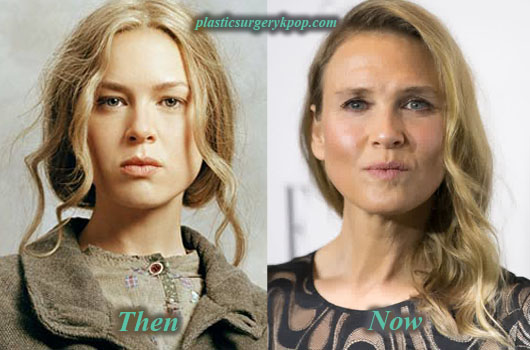 ReneeZellwegerPlasticSurgery Renee Zellweger Plastic Surgery Before After Pictures
