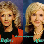 Rexella Van Impe Plastic Surgery Before After Facelift, Botox Picture