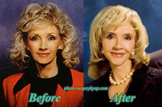 RexellaVanImpePlasticSurgery Rexella Van Impe Plastic Surgery Before After Facelift, Botox Picture