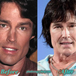 Ronn Moss Plastic Surgery Facelift, Necklift Before After Picture