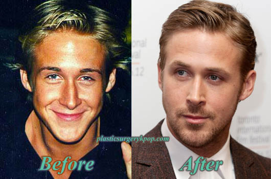 RyanGoslingPlasticSurgery Ryan Gosling Nose Job Before After Plastic Surgery Pictures