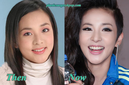 SandaraParkDara2NE1PlasticSurgery Sandara Park Plastic Surgery Before After Pictures