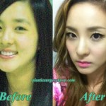 SandaraParkPlasticSurgery 150x150 CL 2NE1 Plastic Surgery Nose Job Eyelid Before After Picture