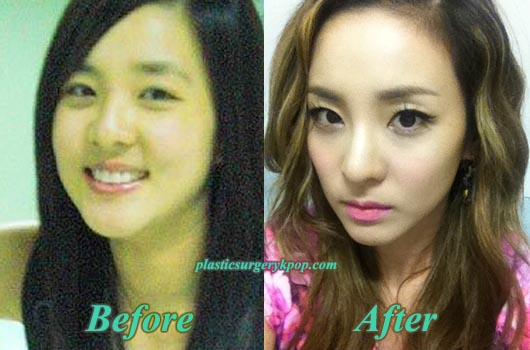 SandaraParkPlasticSurgery Sandara Park Plastic Surgery Before After Pictures