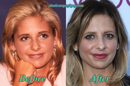 SarahMichelleGellarPlasticSurgery Sarah Michelle Gellar Plastic Surgery Before and After Pictures