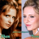 Sarah Michelle Gellar Plastic Surgery Before and After Pictures