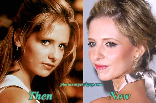 SarahMichelleGellarThenandNow Sarah Michelle Gellar Plastic Surgery Before and After Pictures