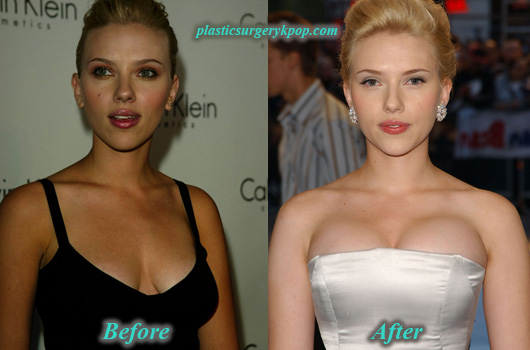 ScarlettJohanssonBreastImplants Scarlett Johansson Plastic Surgery Boob Job Before After Pictures